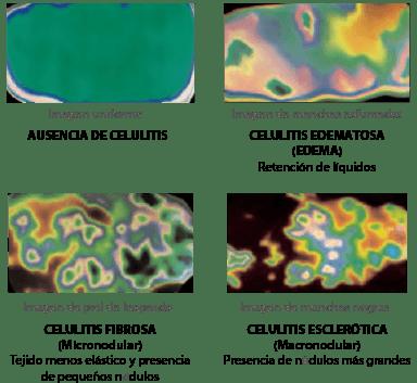 diagnostico de la celulitis en gandia con placas termograficas